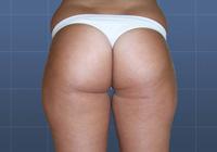 Ambulantní liposukce