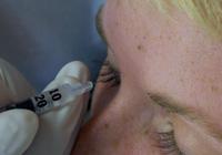 Botulotoxinová terapie